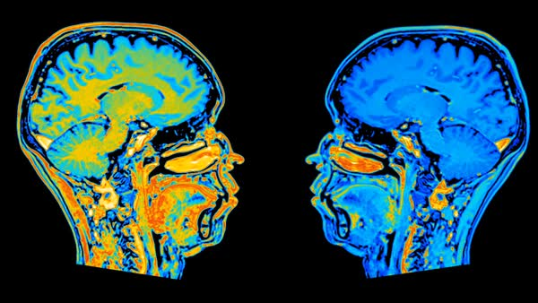 Coloured sagittal MRI scans of different layers through two healthy human heads. Rights-managed stock video