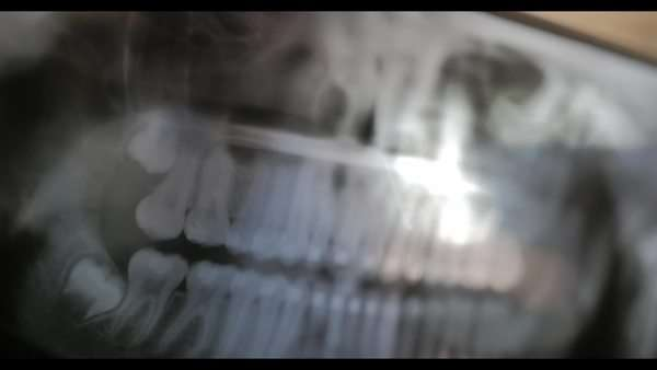 An orthodontist looks at patient's X-Ray. Royalty-free stock video
