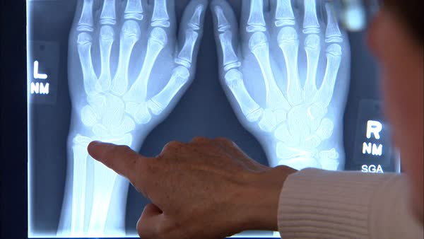 Close up shot of a doctor pointing at an x-ray Rights-managed stock video